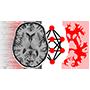 开源的卷积神经网络和医疗影像分析平台 NiftyNet